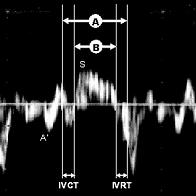 theory-of-tids2